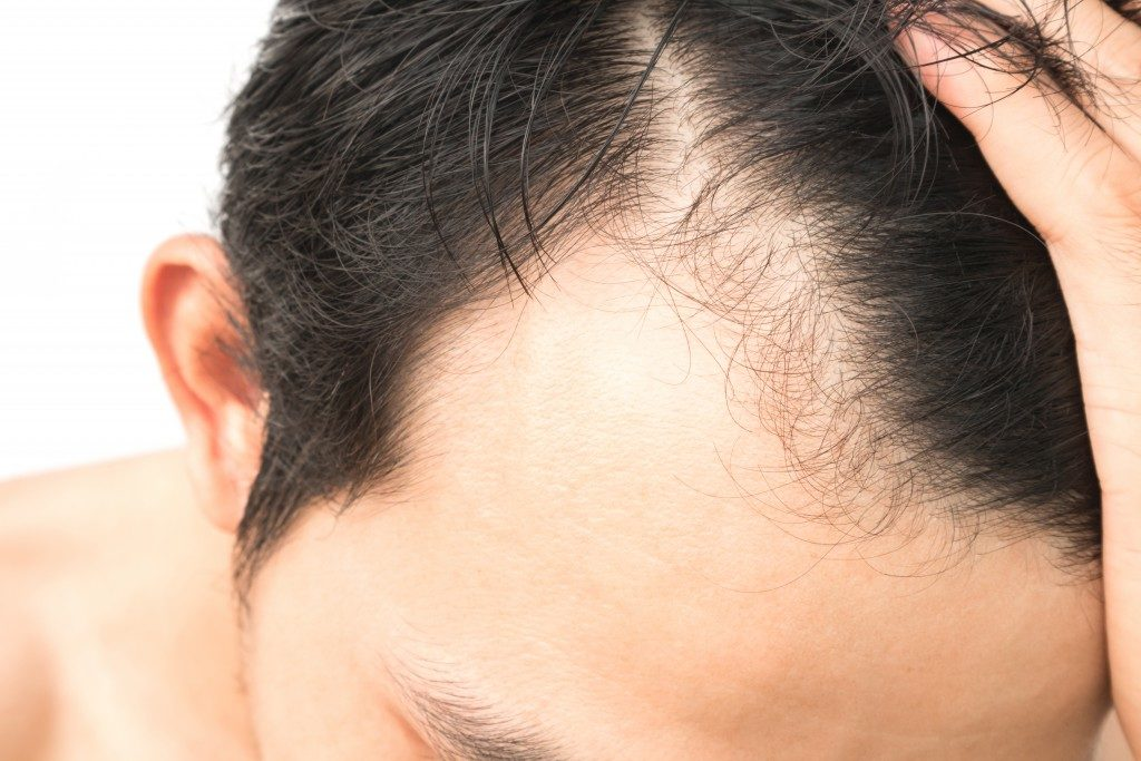 Man scalp up close