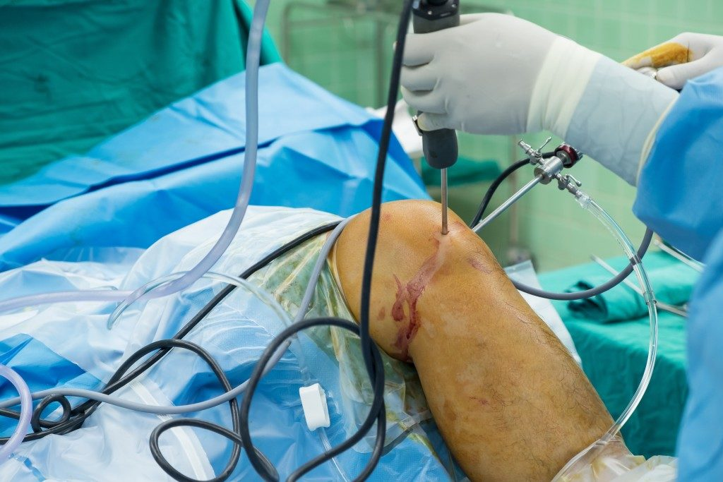 person undergoing knee surgery